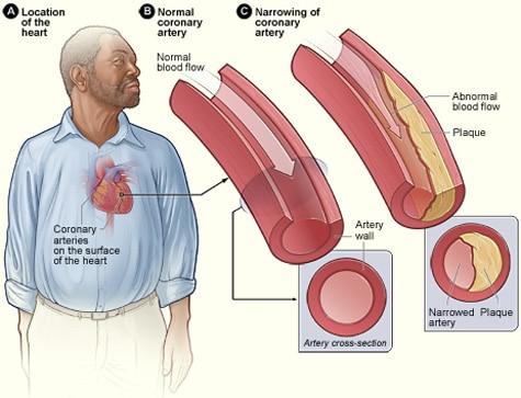 แผนภาพโรคหลอดเลือดหัวใจ