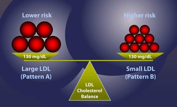 LDL ขนาดเล็กและขนาดใหญ่